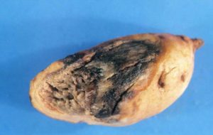 bacterial soft rot